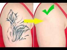 Tattoo Removal Cost Naturally Without Lazer, The Truth And Results