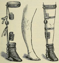 Deformity apparatus: Chas. F. Stillman's long bow-leg braces. 1893 medical supply catalogue.
