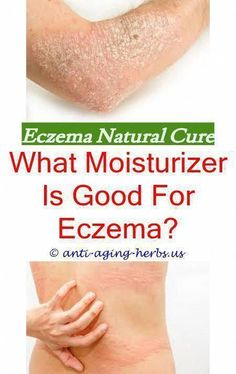 Eczema and pregnancy.How to treat severe eczema on hands - Eczema Cure. Eczema On Hands, Get Rid Of Eczema, Nummular Eczema, Severe Eczema, Cellulite Remedies, Eczema Remedies, Cellulite Exercises, Snoring Remedies, Cellulite Workout