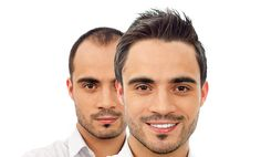 Every guy wants to know how to prevent hair loss. also, every guy wants to cling the idea that it might be possible—The great news is that hair regrowth is possible naturally. How To Grow Natural Hair, Natural Hair Styles, Long Hair Styles, Stop Hair Loss, Prevent Hair Loss, Healthy Hair, Stay Healthy, Healthy Living, Hair Regrowth