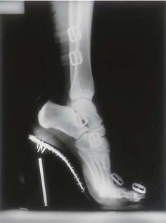 Elsie's x-ray stockings caused quite the stir at the convention of podiatrists. By Helmut Newton Helmut Newton, Guy Bourdin, Shoe Art, Black And White Photography, Human Body, Me Too Shoes, Fashion Photography, Ikon, My Style