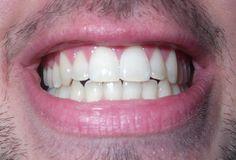 Los dientes son una estructura dura y calcificada que se encuentra en las mandíbulas de muchos vertebrados y se utilizan para reducir de tamaño los alimentos, para la caza o para los propósitos defensivos. Las raíces de los dientes están cubiertas por las encías. Los dientes no están hechos de hueso, sino más bien de múltiples tejidos y minerales de diversa densidad y dureza.