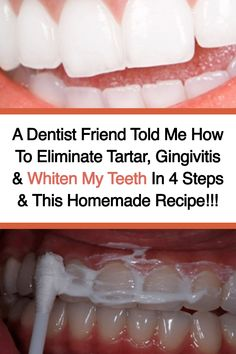 A Dentist Friend Told Me How To Eliminate Tartar, Gingivitis & Whiten My Teeth In 4 Steps & This Homemade Recipe - Home Remedies and Natural Cures - Health Natural Teeth Whitening, Whitening Kit, Dentist Teeth Whitening, Instant Teeth Whitening, Homemade Teeth Whitening, Teeth Health, Oral Health, Health Care, Healthy Teeth