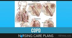 COPD Nursing Care Plans Definition Contents 1 Definition 2 Diagnostic Studies 3 Nursing Priorities 4 Discharge Goals 5 Nursing Care Plans 5.1 Ineffective Airway Cle...