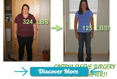 Gastric Sleeve before and after-This has to be my ALL time favorite gastric before and after pics. You can just feel how she changed everything! Her whole energy seems different in the after pic! I have been researching weight loss surgery in general and Gastric sleeve surgery seems the most natural of the options. I cant weight to get back to just being me! #gastricsleeve #wls #fitnessbeforeandafterpictures, #weightlossbeforeandafterpictures, #beforeandafterweightlosspictures, #fitnes...