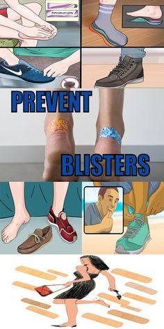 How to Prevent Your New Shoes from Giving You Blisters!