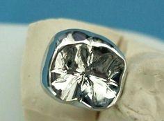 Stainless Steel Metal Dental Crown