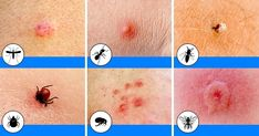 10 Bug Bites Anyone Should Be Able to Identify Summer: The season of picnics, baseball games, and ice cold lemonade. With so much outdoor time comes exposure to these common bug bites in North America. SEE DETAILS. Bug Bite Itch, Ant Bites, Spider Bites, Bites And Stings, Mosquitos, Life Video, Easy Workouts, Good To Know, Helpful Hints