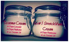 Eczema Cream recipe and scar / stretch mark cream recipe using all natural, Young Living Essential Oils. Member #1822966