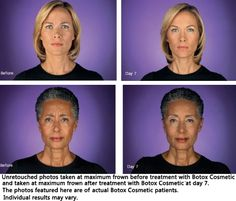 Botox treatment for frown lines of forehead. Pictures taken before treatment and 7 days after treatment.
