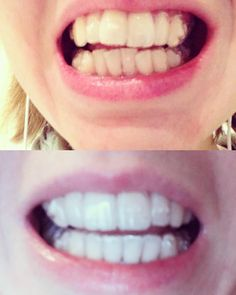 Progress report - currently on number 13/31. My teeth will never be perfect but they look so much straighter already! #invisalign #teeth #invisalign #gettingthere by rachyorme Our Invisalign Page: http://www.myimagedental.com/services/cosmetic-dentistry/invisalign/ Other Cosmetic Dentistry services we offer: http://www.myimagedental.com/services/cosmetic-dentistry Google My Business: https://plus.google.com/ImageDentalStockton/about Our Yelp Page…