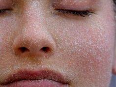 5 remèdes simples au top sur une peau qui souffre tant elle est sèche