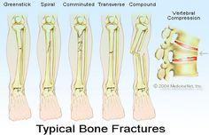 obat tradisional untuk mempercepat penyembuhan patah tulang
