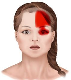 How To Prevent Headaches – Headache And Migraine Relief Today Headache Behind Right Eye, What Is A Headache, What Causes Headaches, Migraine Meds, Headache Symptoms, Migraine Relief, Migraine Attack, Hemiplegic Migraine, Tela