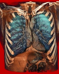 COPD    Volume Rendering of a thoracic CT scan.    COPD (Chronic Obstructive Pulmonary Disease).  Note the lung emphysema, esp. in the left upper lobe.    Rendering done with a Carestream workstation.