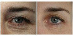 new non-surgical Eye lift