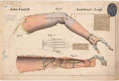 Six Ways the Civil War Changed American Medicine | Science | Smithsonian