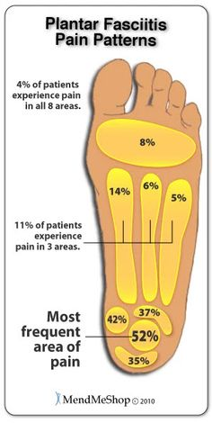 Pain patterns associated with Plantar Fasciitis. While the condition primarily affects the heel region for most, changes in foot biomechanics result in issues developing in the ball of the foot and arches as well.