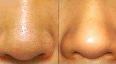 Vous cherchez une solution pour enlever les points noirs ? Voici un remède efficace pour lutter contre les points noirs sur le nez. Ici pas besoin d'acheter un produit spécial ou des patchs ...