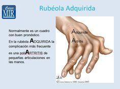 #ReglasNemotecnicas - Rubéola Adquirida- #Pediatría