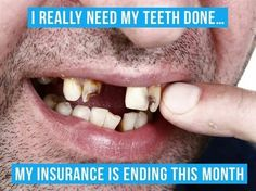 Dentaltown - I really need my teeth done... My insurance is ending this month.