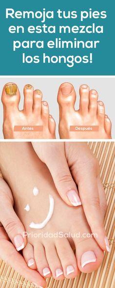 Hongos en uñas pies