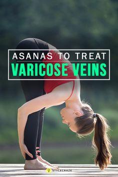 7 Effective Asanas To Treat Varicose Veins