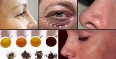 4 tè che proteggono la pelle | Rimedio Naturale