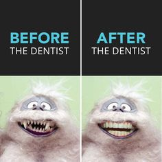 Dental Tip:  Don't wait until it's too late to see the dentist.  You're teeth may start looking ABOMINABLE!