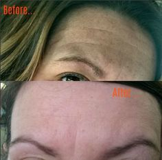 Have you recently lost weight? Noticing those wrinkles and fine lines?This is a great remedy to remove wrinkles from forehead, under eyes, and eliminate mouth lines. What are you waiting for? Get rid of that aging skin today! Enjoy my before & after photo