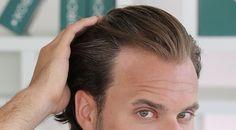 diffuse thinning hair causes hair loss preventing baldness treating balding head Receding Hairline Styles, Prp Hair, Men's Hair, Guy Haircuts Long, Short Textured Hair, Hair To One Side, Keratin Hair, Hair Loss Women, Stop Hair Loss