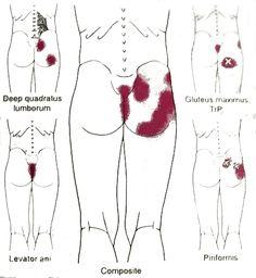 Pelvic girdle pain, hip & back dysfunction