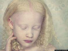 Gustavo Lacerda's Haunting Photographs Of Albinos
