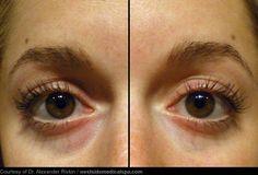 Nutritional Causes of Sunken Eyelids and Dark Eye Circles