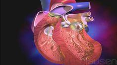 Het lichaam heeft zuurstof nodig om in leven te blijven. Door een netwerk van slagaderen en aderen wordt zuurstofrijk bloed naar het lichaam getransporteerd en zuurstofarm bloed naar de longen teruggevoerd. In dit proces, dat continu voortduurt, staat het hart centraal, een kloppende spier, zo groot als je vuist.  Elke minuut pompt het hart bijna 5 liter bloed rond, en bij elke hartslag circuleert bloed naar de longen en de rest van het lichaam. Dit is mogelijk dankzij de complexe inwendige…