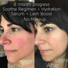 REDNESS got you down? Check out the SOOTHE Regimen. Made to build up the lipid barrier of your skin making you less susceptible to environmental aggressors for calm, hydrated, happy skin. Add in Active Hydration Serum for even better results and hydration. Check out the bundles and save $ ksnodgrass1.myrandf.com