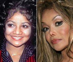 Botched Plastic Surgery, Bad Plastic Surgeries, Plastic Surgery Gone Wrong, Celebrities Before And After, Celebrities Then And Now, Janet Jackson, Jackson Bad, Jackson Family, Bad Nose Jobs