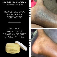 What an amazing before & after. Not gonna lie, even I am sometimes amazed at how truly amazing this healing balm is. Dry skin doesn't stand a chance with 'My Everything Cream' on the job. #dryskin #eczema My Everything, Stretch Marks, Face And Body, Dry Skin, Shea Butter, The Balm, Moisturizer, Conditioner, Fragrance