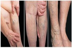 Body Hacks, Face And Body, Health Tips, Health And Beauty, Varicose Veins, Diet, Turmeric, Losing Weight, Health