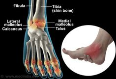The ankle is among the most commonly injured parts of the body. It has to support the entire weight of the body, and is thus extremely vulnerable to injury. Sprain, Healthy Exercise, Sports Medicine, Foot Pain, Medical Information, Bone Health, Anatomy And Physiology, Massage Therapy, Disorders