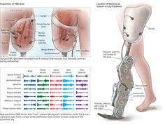 This randomized crossover clinical trial reports preliminary data on the effect of including electromyographic data and historical information from prior gait strides in a real-time control system for a powered prosthetic leg during ambulation.