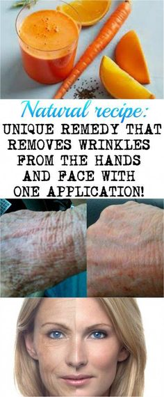 UNIQUE REMEDY THAT REMOVES WRINKLES FROM THE HANDS AND FACE WITH ONE APPLICATION! #SaltFaceScrub Dandruff Solutions, Wrinkle Remedies, Getting Rid Of Dandruff, Reduce Cellulite, Younger Skin, Oily Skin Care, Prevent Wrinkles, Wrinkle Remover, Face Care
