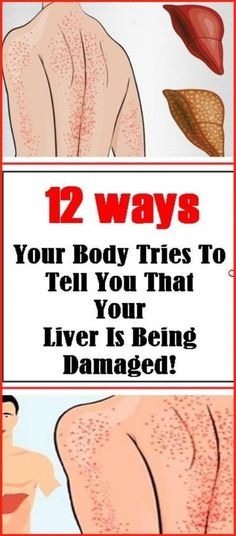 12 Ways Your Body Tries To Tell You That Your Liver Is Being Damaged! 12 Ways Your Body Tries To Tell You That Your Liver Is Being Damaged! Alcohol Intolerance, Stomach Nausea, Abdominal Bloating, Endocannabinoid System, Feeling Nauseous, Irritable Bowel Syndrome, Liver Disease, Heart Disease, Fatty Liver