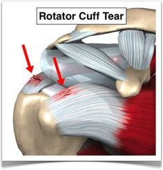 Shoulder Pain Rotator cuff injuries are very common. Over the age of the rotator cuff is responsible for the shoulder pain that most of us experience. Rotator Cuff Rehab, Rotator Cuff Exercises, Shoulder Tendonitis Exercises, Shoulder Exercises, Shoulder Workout, Shoulder Trigger Points, Shoulder Anatomy, Shoulder Rehab, Massage