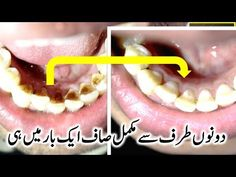 This Video Teeth Whitening & Try it Once And See The Result ( 2018 ) 6 Ways to Naturally Whiten Your Teeth Brush After Drinking or Eating. Baking Soda an. Good Health Tips, Natural Health Tips, Healthy Tips, Natural Skin Care, Beauty Tips For Skin, Health And Beauty Tips, Beauty Skin, Diy Skin Care, Skin Care Tips