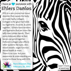 Please re-pin for Ehlers Danlos awareness! It'd be nice if doctors didn't ask me to spell my disorder so they can google it while I'm in the ER.  Yeah, that'd be nice.