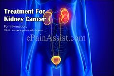 Treatment For Kidney Cancer Kidney Cancer, Abdominal Pain, Signs And Symptoms, Factors, Surgery, Neon Signs, Upset Tummy