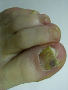 16 Best Foot Fungus Images Toenail Fungus Foot Fungus Athletes