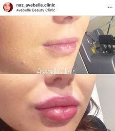 Pouts are in! Lips before and after augmentation – lip filler before and after lip filler before and after – , Pouts are in! Lips before and after augmentation – lip filler before and after lip filler before and after – , Cheek Fillers, Facial Fillers, Botox Fillers, Dermal Fillers Lips, Lip Plumping Balm, Lip Piercing Ring, Botox Lips, Botox Before And After, Lip Fillers Before After
