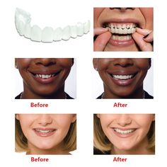 Item specifics Size:Moderate Model Number:Snap On Smile Uapper Ingredient:Perfect Smile Teeth Item Type:Teeth Whitening NET WT:Snap On Smile care veneers teeth Smile teeth veneers Smile Teeth Comfortable, Comfort Fit Snap On Smile Teeth Toot Dental Prosthesis, Perfect Smile Teeth, Snap On Smile, Veneers Teeth, Teeth Braces, Braces Smile, Stained Teeth, Natural Teeth Whitening, Skin Whitening